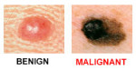 What I've Learned From Having Malignant Melanoma... Twice.